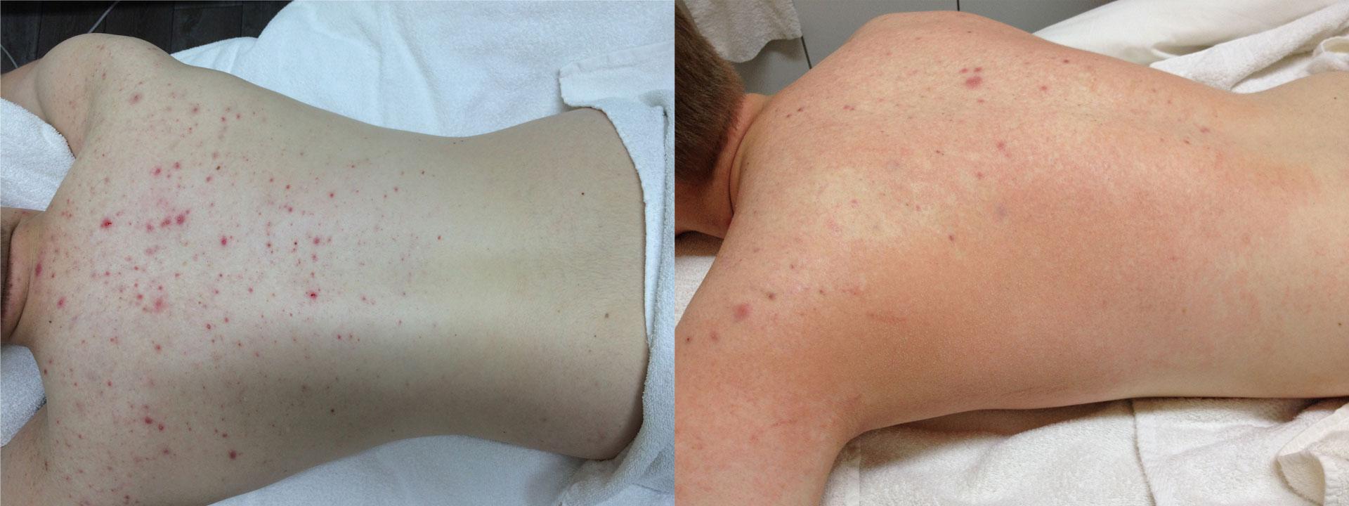 bumser på ryggen behandling