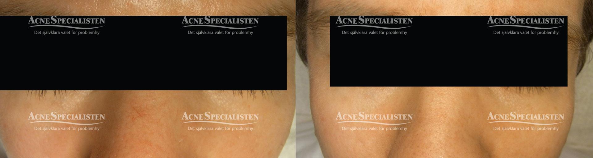 acnespecialisten